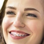 Invisalign aligners: how many hours a day do I need to wear them?