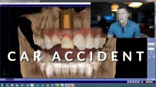 Midland Tx Emergency Dentist