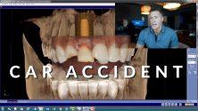 Allen TX Emergency Dentist