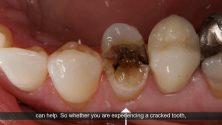 Dallas Tx Emergency Dentist