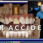 Midland Tx Emergency Dentist